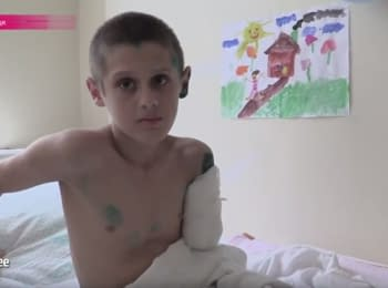 В Донецкой области из-за халатности боевиков покалечились дети