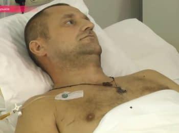 Поранені під час перемир'я на Донбасі